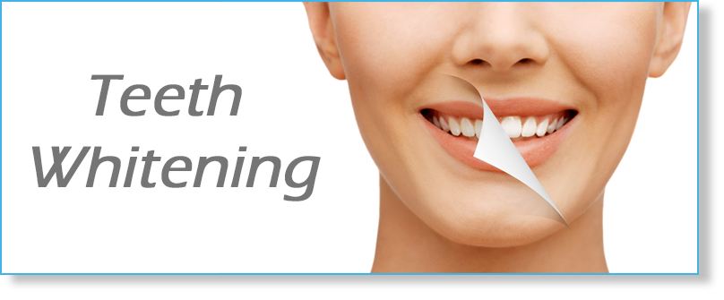 Teeth Whitening in St. Petersburg