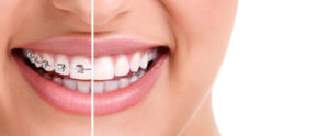 Why Invisalign? The Advantages of Invisible Braces